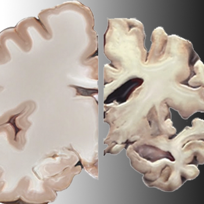 Could Alzheimer's Disease be a Response to Infection?