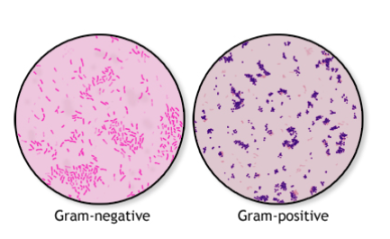 The history of the Gram stain